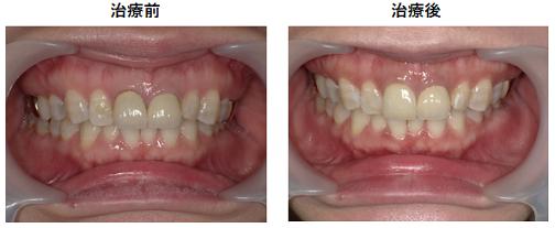 色が変わった前歯の被せ物をジルコニアで再治療した症例