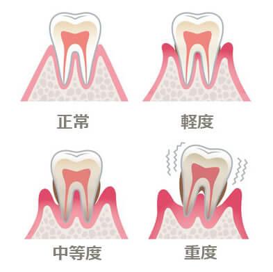 歯周病って何?